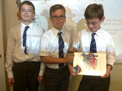 Year 6 take a delve into the human heart…..